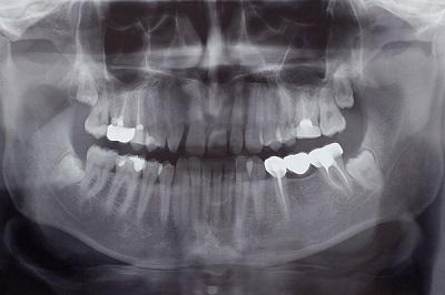 DANB Certified Dental Assistant (CDA) Practice Exam (Updated